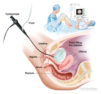 Cystoscopy Procedure